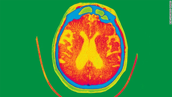 Smell test may help detect Alzheimer's