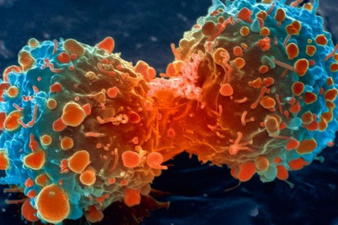 Cancer 2nd leading cause of death in Barbados