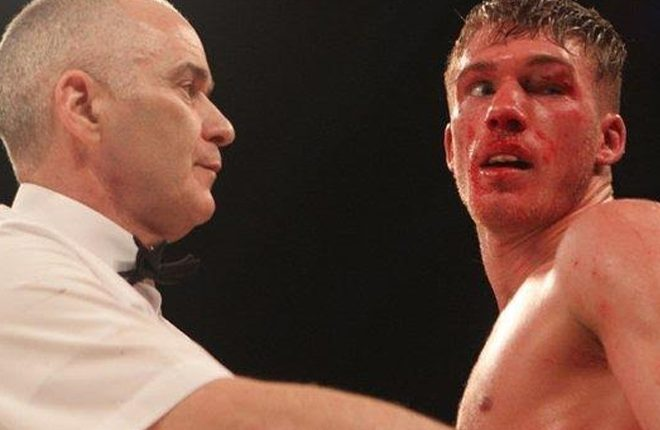 Nick Blackwell: Trainer Liam Wilkins has licence withdrawn after sparring session